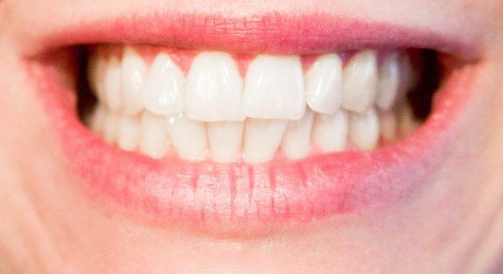 Avoir de belles dents