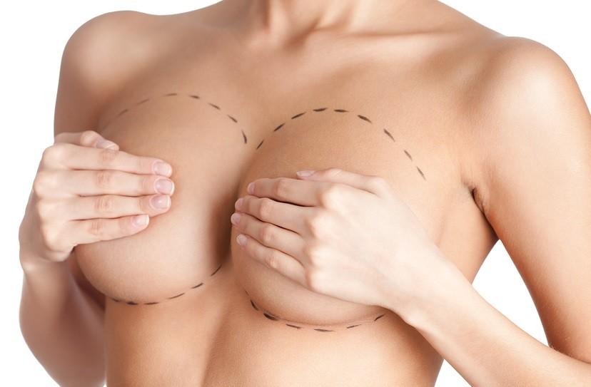 Augmentation mammaire préparation avant